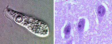 """Vista de la ameba """"naegleria fowleri"""" al microscopio / Foto: Center for Disease Control and Prevention de EE.UU."""