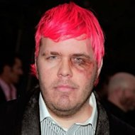 You've Gotta Blog Like There's Nobody Watching image Perez hilton black eye 300x300