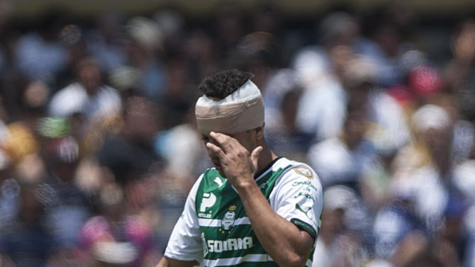 Santo's Adrian Aldrete reacts after missing a chance to score against Pumas during a Mexican soccer league match in Mexico City, Sunday, April 19, 2015. (AP Photo/Christian Palma)