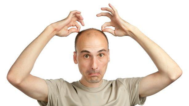 Science Is Getting Closer to Curing Baldness