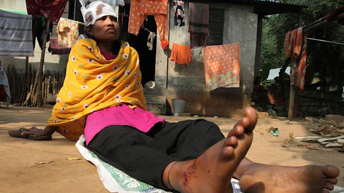 In this photo taken on Friday Nov. 29, 2012, Ratna Begum, a survivor of a garment factory fire, rests in her house in Dhaka, Bangladesh. Major retailers have disavowed the Bangladesh garment factory where 112 workers died in the fire last month, but the survivors of the fire have not. Factories like the one gutted on Nov. 24 are a rare lifeline in this desperately poor country, and now many of the more than 1,200 surviving employees have no work and few prospects. (AP Photo/ Ashraful Alam Tito)