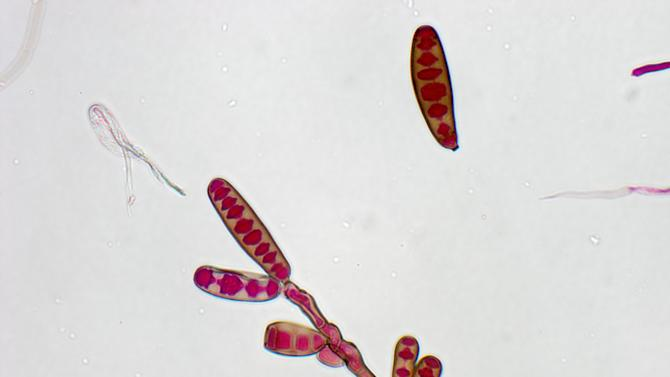 This undated image made available by The Centers for Disease Control and Prevention shows the Exserohilum rostratum fungus. The CDC said Thursday, Oct. 11, 2012 tests have shown Exserohilum fungus in 10 people sickened in the current fungal meningitis outbreak. It's a common mold found in soil and on plants. (AP Photo/CDC)