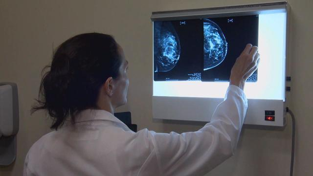 New data helps identify breast cancer risks, treatments