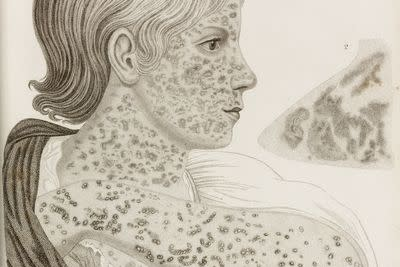 9 things everybody should know about measles