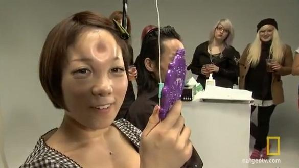 Is Becoming a 'Bagel Head' Dangerous?