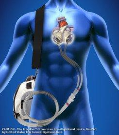 Surgeons Worldwide Implanted a Record 125 SynCardia Total Artificial Hearts So Far in 2013