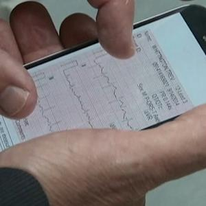 TIME SAVES LIVES: NEW, FASTER TREATMENT FOR HEART ATTACKS