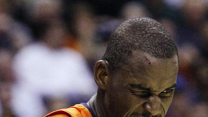 Syracuse center Baye Keita (12) walks across the court after receiving a cut on his forehead after a fall during the first half of an East Regional semifinal in the NCAA college basketball tournament against Indiana, Thursday, March 28, 2013, in Washington. (AP Photo/Pablo Martinez Monsivais)