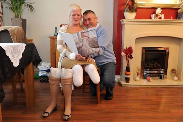 Debbie Grant Lost Her Legs After Suffering From Rare And Deadly Form