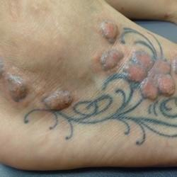 In Addition To Regret, Tattoos Can Pose Serious Health Risks