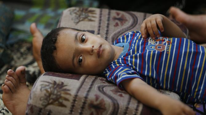 Two and a half-year-old Muhammad Al Masri rests on his mother's legs in a classroom at a United Nations school where hundreds of families have sought refuge after fleeing their homes following heavy Israeli forces' strikes, in Jebaliya refugee camp, Gaza Strip, Friday, July 25, 2014. Over 140,000 Palestinians are seeking shelter in 83 UNRWA schools, according to UNRWA spokesman Chris Gunness. The number of Palestinians seeking shelter since the ground operation began has increased seven-fold. (AP Photo/Lefteris Pitarakis)