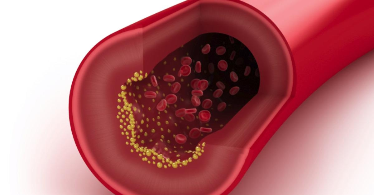 Top Blood Thinner Treatments & DVT Solutions
