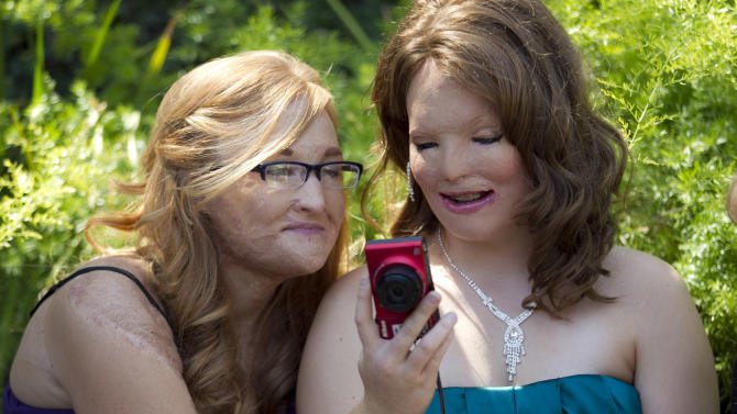 In this June 22, 2012, photo, Larisa Hertz, left, and Bethany Essary look at a photo of themselves at the Angel Faces retreat in Corona, Calif. Angel Faces is an annual retreat for young girls with severe burns or facial disfigurement that focuses on psychological healing through group counseling, role-playing, art therapy and workshops that teach coping skills. (AP Photo/Jae C. Hong)
