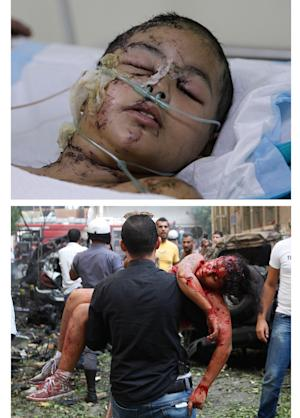 COMBO - This combo of two photographs shows at top, Jennifer Shedid, 10, recovers in intensive care in Beirut, Lebanon, Monday Oct. 22, 2012; and at bottom, a Friday, Oct. 19, 2012 file photo, of a Lebanese man as he carries Jennifer Shedid, 10, at the scene of an explosion in the mostly Christian neighborhood of Achrafiyeh, Beirut, Lebanon.  Nearly five minutes after arriving home from school with her cousin, 10-year-old Jennifer Shedid was hungry. As she asked her sister what food they have, a strong explosion shook their street turning the glass of their 4th floor apartment into flying knives that cut through her from head to toe.(AP Photo/Hussein Malla)