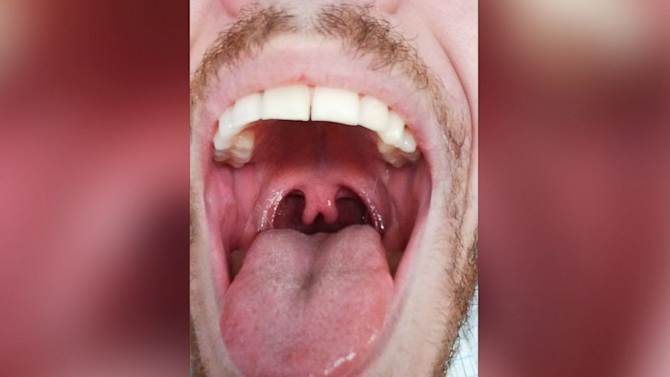 Photo of Man's 'Double' Uvula Goes Viral
