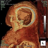 CT scans of a 2,400-year-old female mummy revealed a tubular object embedded in its skull between the brain's left parietal bone and the resin filled back of the skull. It would turn out to be a tool used for the removal of the brain. This is o