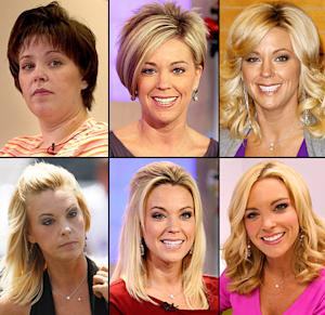 Did Kate Gosselin Get a Facelift?