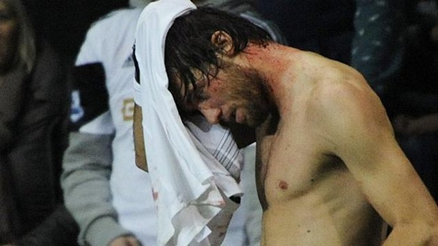 The blood-spattered Michu - Swansea v St Gallen
