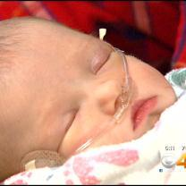3-Day-Old Baby Recipient Of Pacemaker For Defected Heart