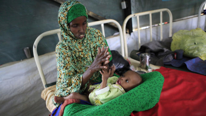 "Mariam Abucar Omar plays with her son Abdirahman Abdullahi, 7 months, at a Doctors Without Borders hospital where he is receiving treatment for severe malnutrition, in Dagahaley Camp outside Dadaab, Kenya, Monday, July 11, 2011. U.N. refugee chief Antonio Guterres said Sunday that drought-ridden Somalia is the ""worst humanitarian disaster"" in the world, after meeting with refugees who endured unspeakable hardship to reach the world's largest refugee camp in Dadaab, Kenya. (AP Photo/Rebecca Blackwell)"