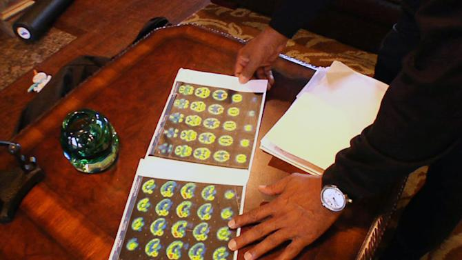In this image take from video shot on Wednesday, Jan. 25, 2012, Tony Dorsett shows images from a nuclear scan done on his brain, which he says show damage from repeated blows to the head while he was playing in the National Football League, during an interview in his suburban Dallas home. Dorsett, 57, is one of at least 300 former players suing the NFL, claiming the NFL pressured them to play with concussions and other injuries and then failed to help them pay for health care in retirement to deal with those injuries. (AP Photo/Martha Irvine)