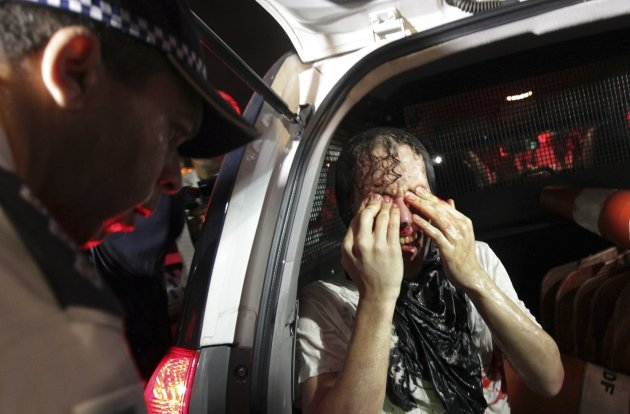 An injured demonstrator sits in a police van after he was arrested during a protest against the Confederation's Cup and the government of Brazil's President Dilma Rousseff in Brasilia