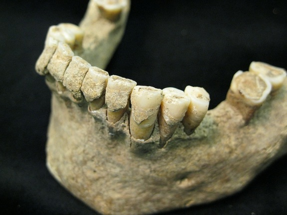 'Microbial Pompeii' Found on Teeth of 1,000-Year-Old Skeletons