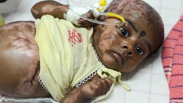 Doctors Investigate Indian Baby for Spontaneous Combustion (ABC News)