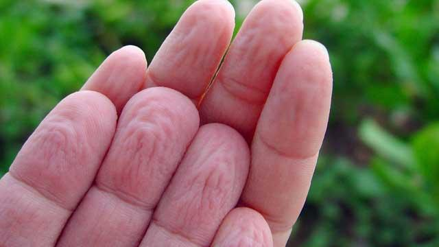 Revealed: Why We Get Prune Hands
