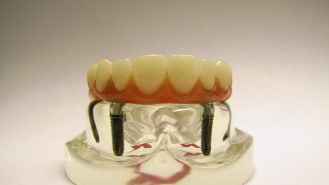 File photo of a display model of a dental implant as seen at the Nobel Biocare manufacturing facility in Yorba Linda, California