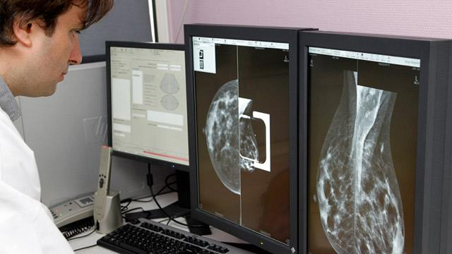 Four Distinct, Genetic Types of Breast Cancer, Study Finds