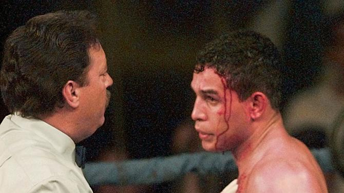 "FILE - In this Jan. 16, 1996 file photo, referee Jorge Alfonso, left, looks over a cut on the forehead of IBC Welterweight boxing champ Hector ""Macho"" Camacho during the second round of his title bout with Sal Lopez from New Jersey, in Ft. Lauderdale, Fla. Camacho, a boxer known for skill and flamboyance in the ring, as well as for a messy personal life and run-ins with the police, has died, Saturday, Nov. 24, 2012, after being taken off life support. He was 50.  (AP Photo/Hans Deryk, File)"