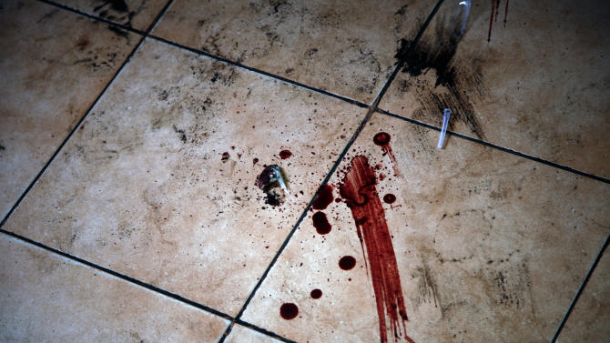 Blood stains the floor of  the hospital in  Goma Congo Saturday Nov. 24, 2012 .   Regional leaders meeting in Uganda on Saturday called for an end to the advance by M23 rebels toward Congo's capital, and also urged the Congolese government to sit down with rebel leaders as residents fled some towns for fear of more fighting between the rebels and army.(AP Photo/Jerome Delay)