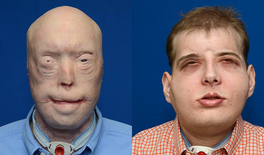 This Firefighter Just Received the Most Extensive Face Transplant in History