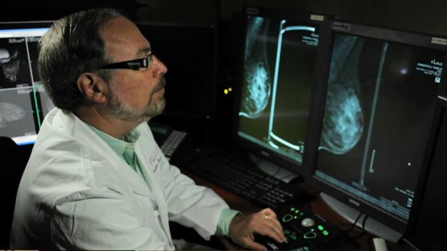 3D mammogram helps breast cancer detection