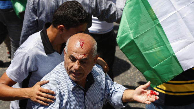 A Palestinian reacts as he is injured when Palestinian policemen clashed with protesters in the West Bank city of Ramallah, Sunday, July 28, 2013. Some two hundred supporters of the Popular Front for the Liberation of Palestine protested against the resuming of the peace talks with Israel. (AP Photo/Majdi Mohammed)