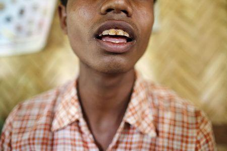 A victim of forced labour speaks during a Reuters interview in a village at Buthidaung township in northern Rakhine state