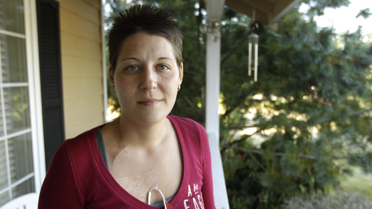 Michelle Dunaj, of Roseville, Mich., poses for a photo, Tuesday, Oct. 9, 2012, at the home of friends in Bonney Lake, Wash. Dunaj, who is dying of leukemia, was making what she expects will be the last trip of her life on Oct. 2, 2012, as she departed for Hawaii through Seattle-Tacoma International Airport. Dunaj says she received a full public pat-down in the TSA security line and had to lift her shirt and pull back bandages so agents could get a good look at tubes used for feeding and medicine. Dunaj hopes her embarrassing experience will change the way the Transportation Security Administration treats travelers with medical conditions. (AP Photo/Ted S. Warren)