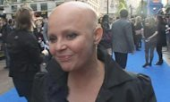 Gail Porter uses stickers to cover her alopecia