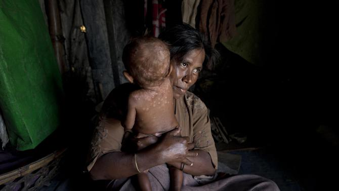 FILE - In this June 25, 2014, file photo, a Rohingya refugee holds her daughter who suffers from a skin disease in their makeshift tent at Dar Paing camp, north of Sittwe, Rakhine state, Myanmar. Myanmar's downtrodden Rohingya Muslims have been denied citizenship, targeted in deadly sectarian violence and corralled into dirty camps without aid. To heap on the indignity, Myanmar's government is pressuring foreign officials not to speak the group's name, and the pressure appears to be working. U.N. officials say they avoid the term in public to avoid stirring tensions between Buddhists and Muslims. U.S. Secretary of State John Kerry voiced serious concern about the situation when he met with Myanmar leaders last weekend. (AP Photo/Gemunu Amarasinghe, File)