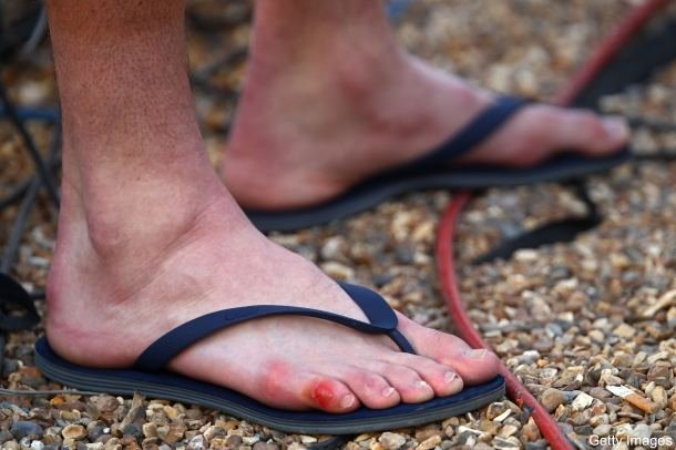 Those are John Isner's feet following his Wimbledon matches. If I were