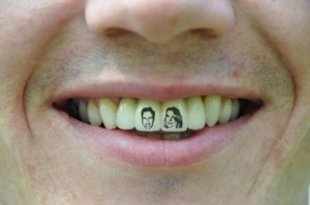 Prince William and Kate Middleton teeth tattoos. Courtesy of Small World News.