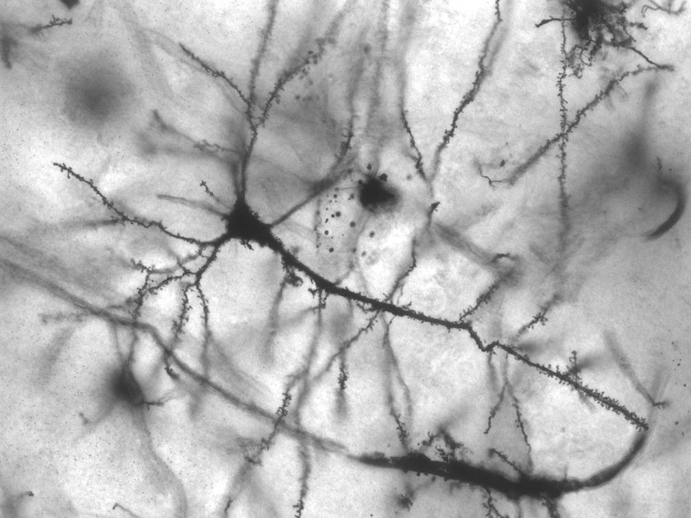 A drug that could change the way we treat Parkinson's disease just got approved