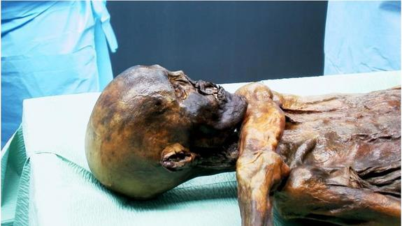 Iceman Mummy Suffered Head Blow Before Death