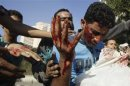 Protesters help an injured man, who was hurt during clashes, along a road leading to the U.S. embassy, near Tahrir Square in Cairo