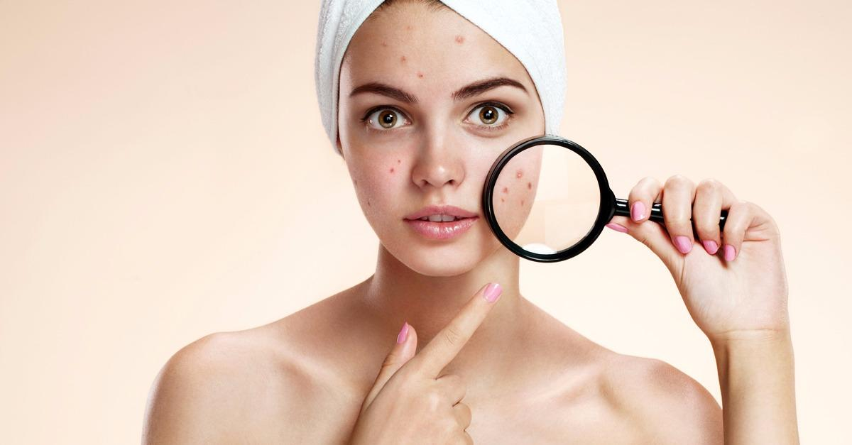 Simple Solution Helps Eliminate Acne