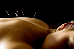 A few painless facts about acupuncture.