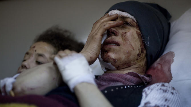In this Saturday, March 10, 2012 photo, Aida, 32, reacts as she recovers from severe injuries after the Syrian Army shelled her house in Idlib north Syria, Saturday, March 10, 2012. Aida's husband and two of her children were killed after their home was shelled. (AP Photo/Rodrigo Abd)