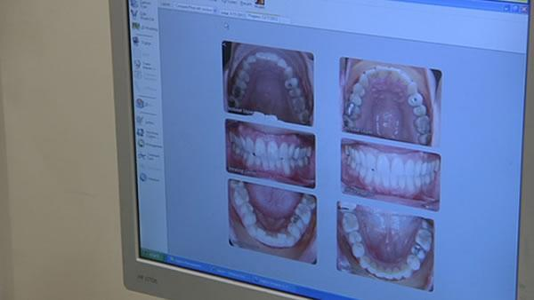 New technology making braces more comfortable