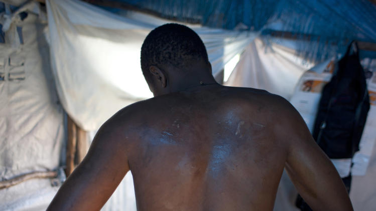 In this April 25, 2013 photo, Darlin Lexima shows the marks on his back which he says is the result of a police beating, as he poses for photos inside his home at Camp Acra in the Delmas district of Port-au-Prince, Haiti.  Lexima says his injuries are from being beating by police with their batons and the butts of their pistols and rifles in the Delmas police station after he was arrested by police early April 15 when he was walking home from a disco club, as police were responding to residents at his camp who were protesting an earlier raid by motorcyclists who set fire to their homes. The motorcyclists came to Camp Acra hours after attorney Reynold Georges arrived with a judge and a police officer and told the some 30,000 people who had lost their homes in the 2010 earthquake that they were squatting on his land and had to leave, witnesses said. If they didn't vacate, he said he'd have the place burned down and leveled by bulldozers. (AP Photo/Dieu Nalio Chery)